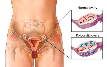 Normal and PolyCystic Ovaries